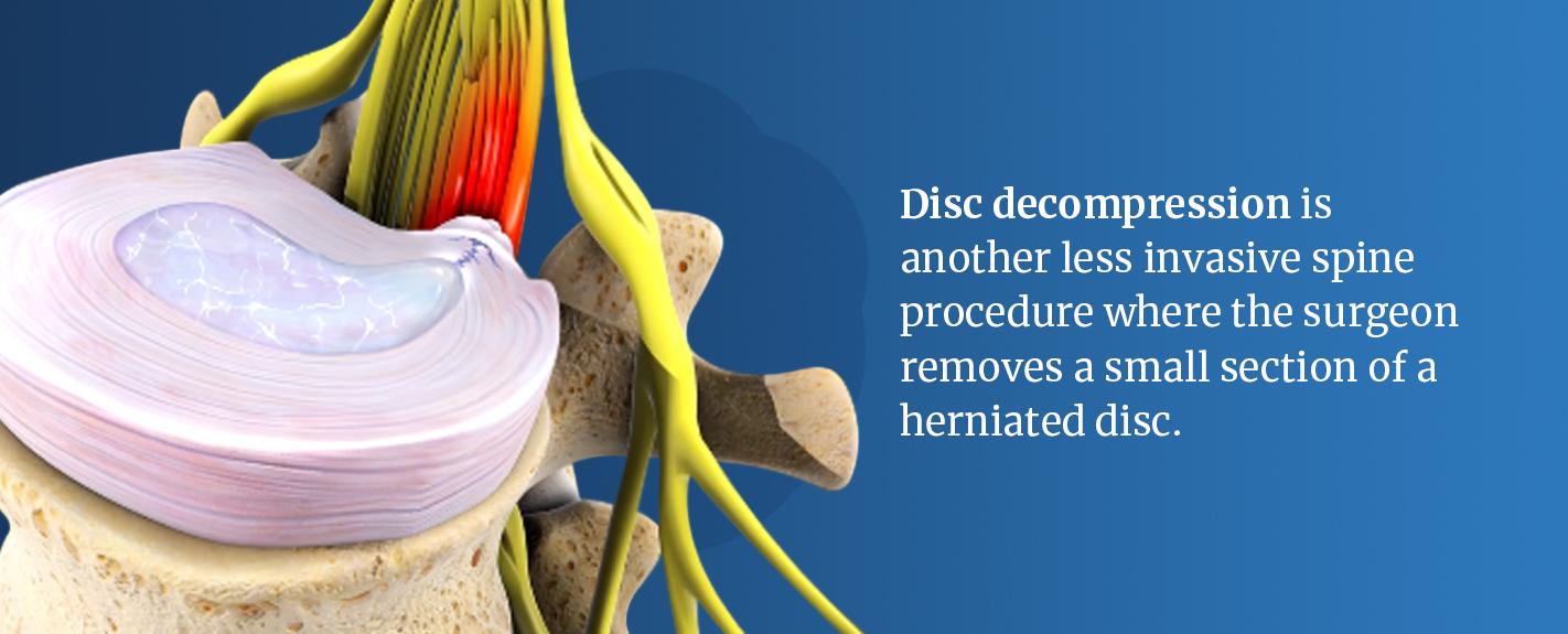 disc decompression